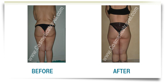 Before after photos of abdominoplasty 1