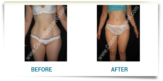 Before after photos of abdominoplasty 2