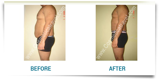 Before after photos of abdominoplasty 3