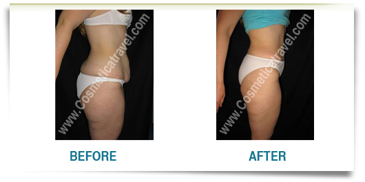 Before after photos of abdominoplasty 4