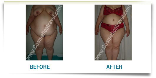 Before after photos of abdominoplasty 5