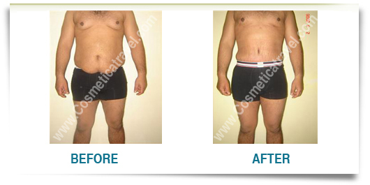 Before after photos of abdominoplasty 6