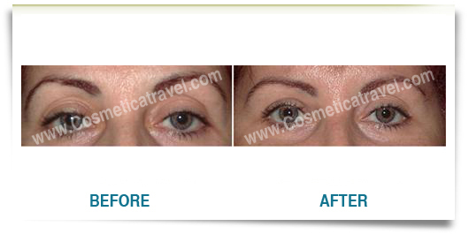 Before and after blepharoplasty photos 1