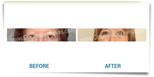 Before and after blepharoplasty photos 2