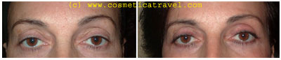 Before and after blepharoplasty photos 3