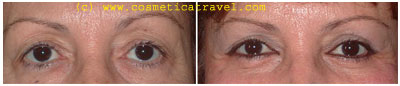 Before and after blepharoplasty photos 4