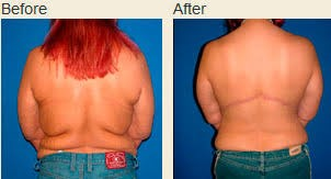 Photos before and after a body lift surgery