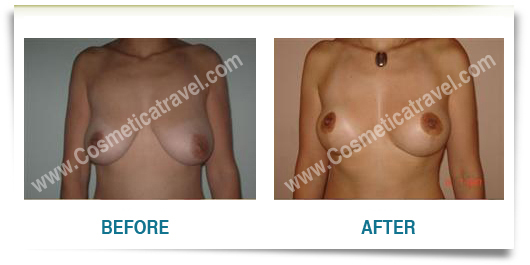 Before after photos of a breast lifting surgery 1