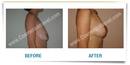 Before after photos of a breast lifting surgery 2
