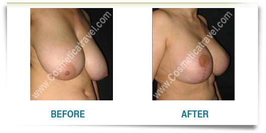 Breast Reduction Photo