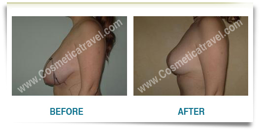 Breast reduction surgery  before after
