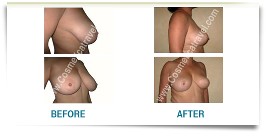 Before after picture breast size reduction