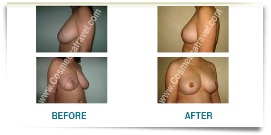 Reduction mammoplasty before after picture