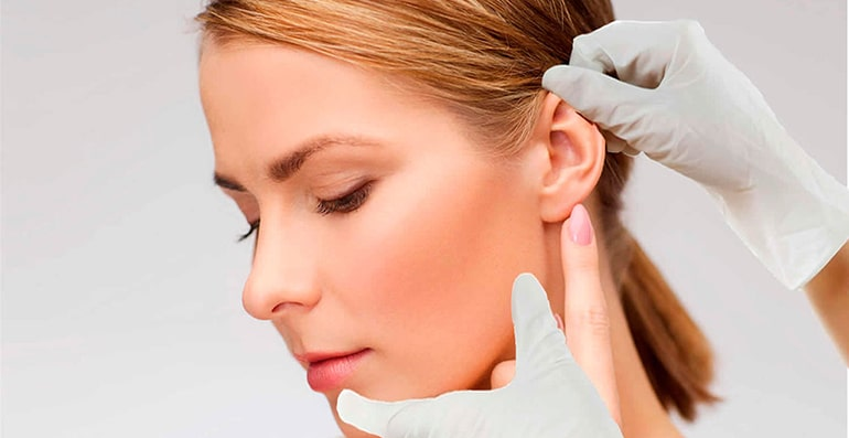 Otoplasty : Ear plastic surgery