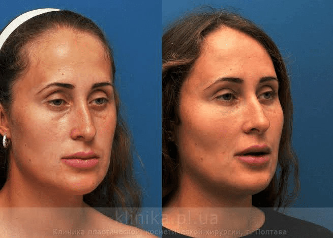 How face lipofilling surgery is carried out 1