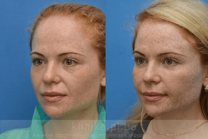 How face lipofilling surgery is carried out 2