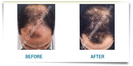 Man hair transplant before after picture