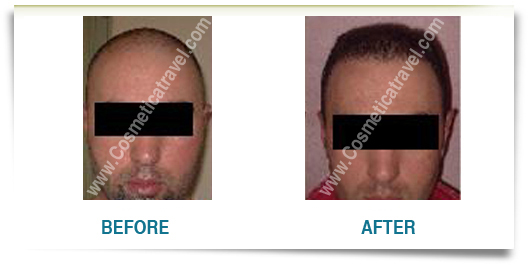 Hair transplants picture before after