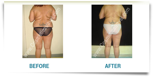 Before after liposuction picture woman