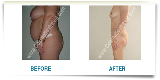 Picture of liposuction before after