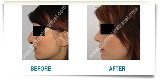 Rhinoplasty Photo