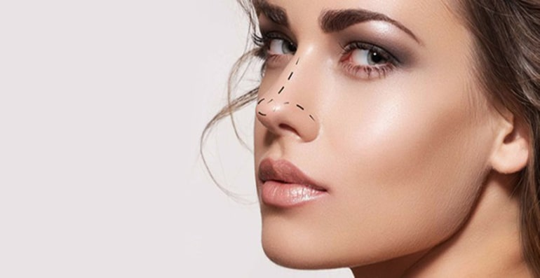 Rhinoplasty : Nose cosmetic surgery